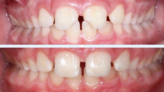 qué hacer cuando se te rompe un diente