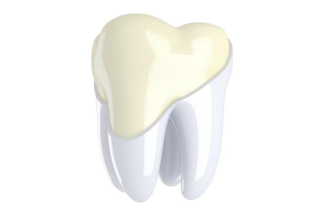 qué es la abrasion dental