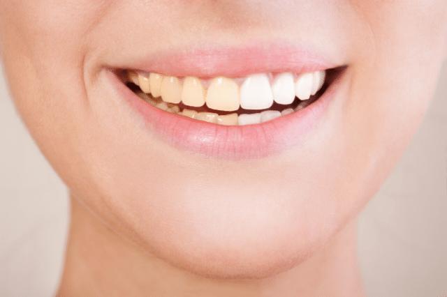 cómo combatir los dientes amarillos