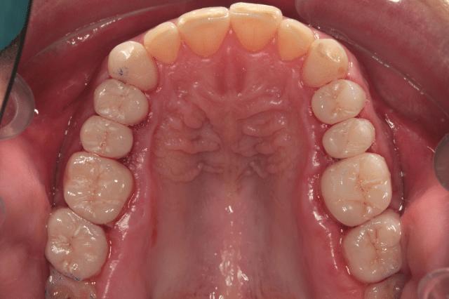 ¿En qué consiste la odontología conservadora?