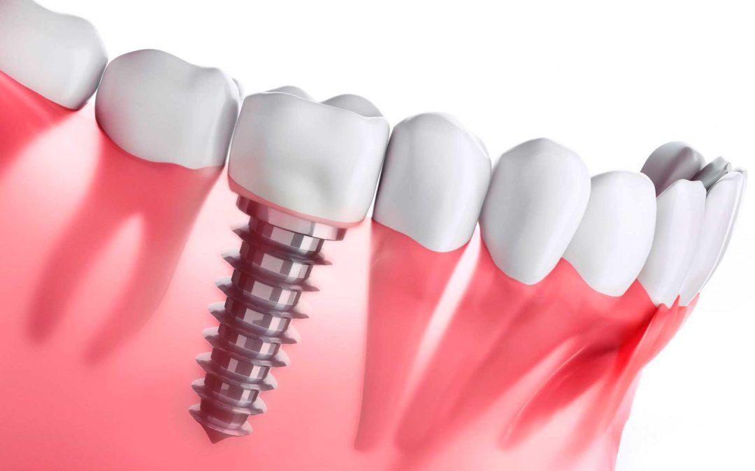 Implantes dentales ¿cuál necesitas?