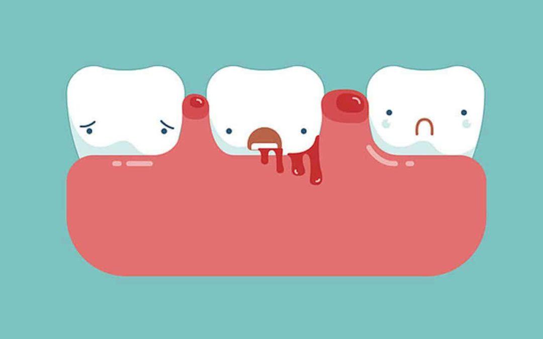 Prevenir el sangrado de encías
